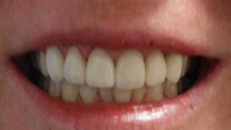 bright smile after dental crowns l cosmetic dentist austin tx