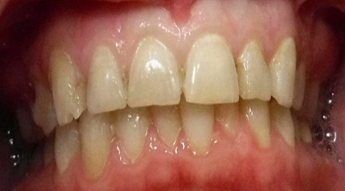 close up of dingy teeth before dental crowns l dental crowns austin tx